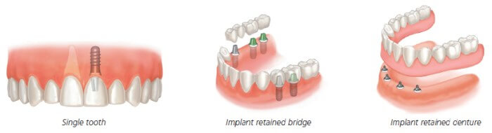 dental implants cardiff
