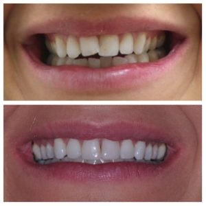 Invisalign in Cardiff - Dental Implants in Cardiff - Invisible Braces in Cardiff - Cosmetic dentist Cardiff - Invisalign in Newport